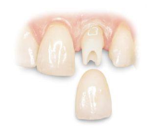 implanta2