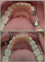 implanta4