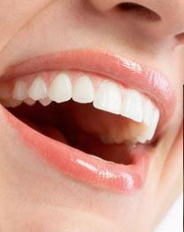 periodont1