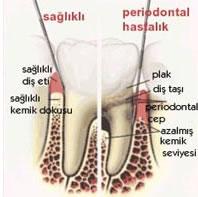 periodont2