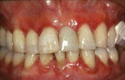 periodont3