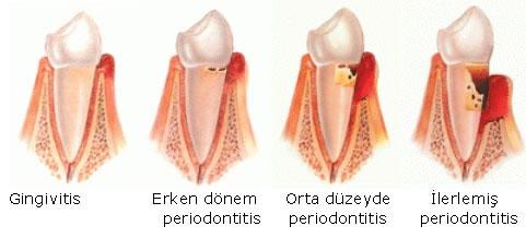 periodont4
