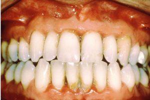 periodont5