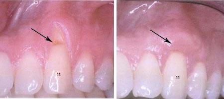 periodont7