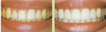 periodont8