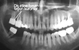 periodont9
